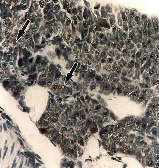 Sleeping 2 Pankreas- IHC-pozitivne celije