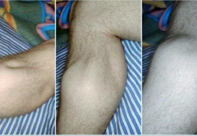 Zašto se grčevi u nogama javljaju noću i kako umanjiti bol?